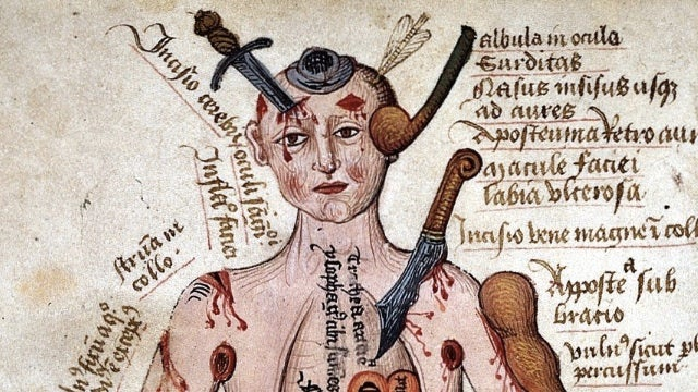 What the game of Operation would look like in the Middle Ages