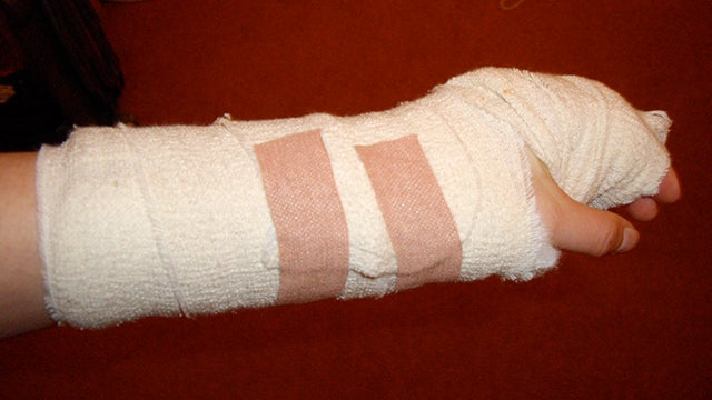 How to Treat Minor Injuries Without a First Aid Kit