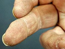 Regrowing Fingers Using Pig Bladders