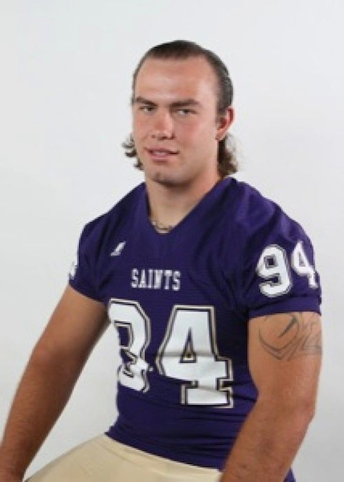 Photos Of College Football Player's Bloomin' Onion Burns [GRAPHIC]