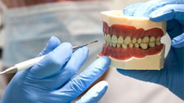 How a 3D-Printed Jaw Let a Woman Eat Again