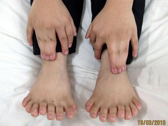 This Child Has 31 Fingers and Toes—Or Does He?