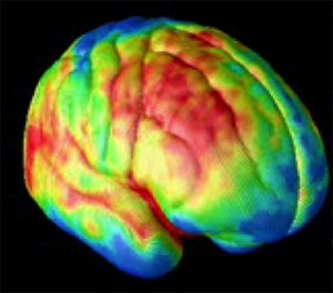 Schizophrenic Brains Make More Complicated Music Than Sane Ones