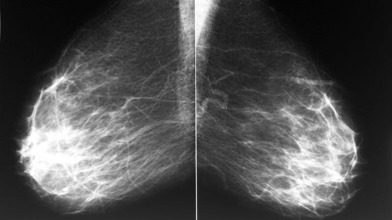 Double Mastectomy May Not Increase Life Expectancy After Breast Cancer