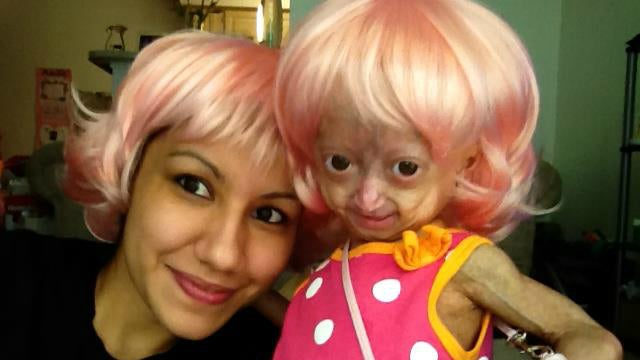 Adalia Rose and Her Family Will Make their National TV Debut with Anderson Cooper