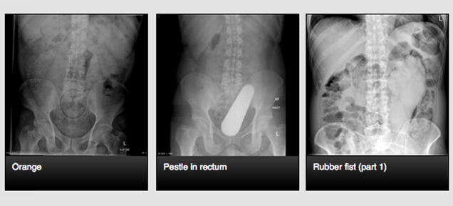 The Site Where Doctors Go To Share X-Rays of Weird Things in Butts
