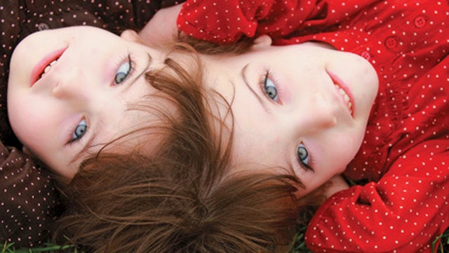 Do these conjoined twins share consciousness?
