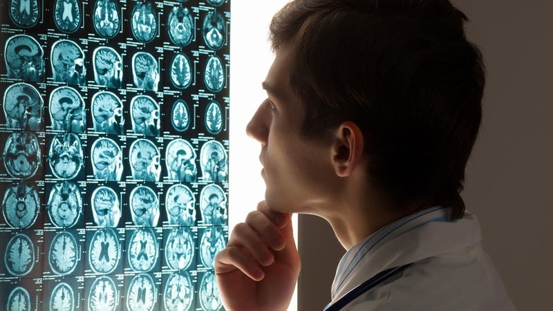 Hospital Fined for Putting Poop Germs in Patients' Brains on Purpose