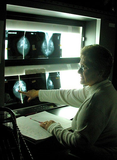 Experts Argue That Cancer Screening Doesn't Save Lives