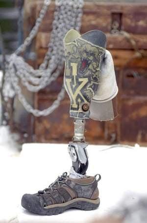 Found: One University Of Kentucky Prosthetic Leg