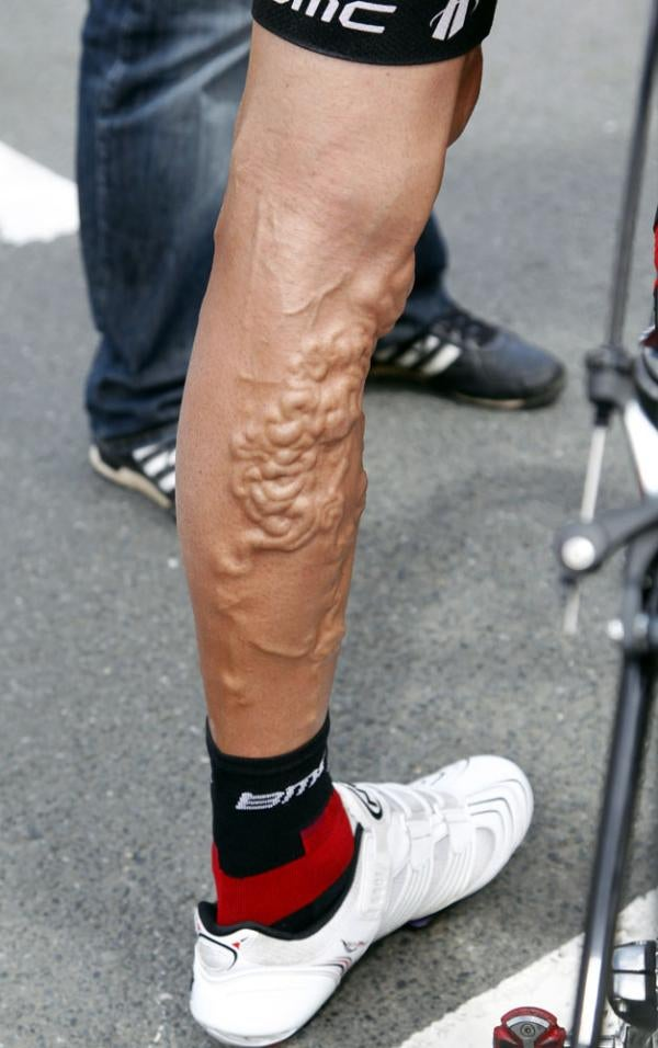 This Is Your Leg. This Is Your Leg On Cycling.