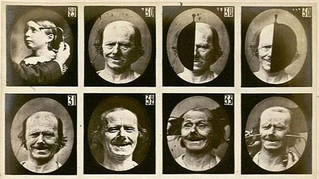 The quest for the perfect smile required electrocuting people's faces