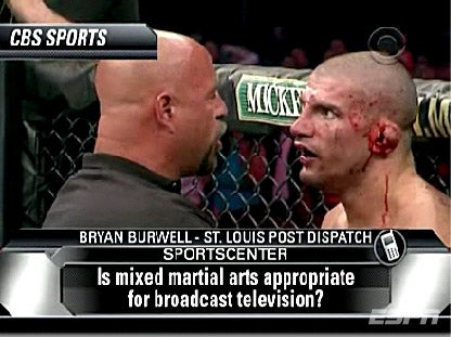 Cauliflower Ears Get Mainstream Recognition Thanks To Kimbo