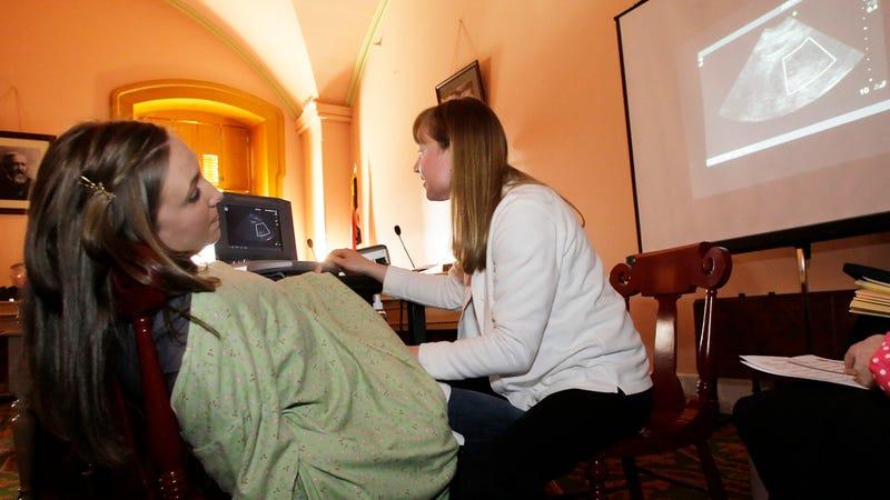 Fetuses 'Testify' During Ohio Abortion Debate