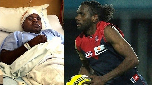 "Australian Footballer Requests Time Off For ""Family Issues,"" Attacks Cousin With A Machete"
