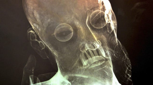 X-Ray Reveals Real Human Teeth in 300-Year-Old Jesus Statue