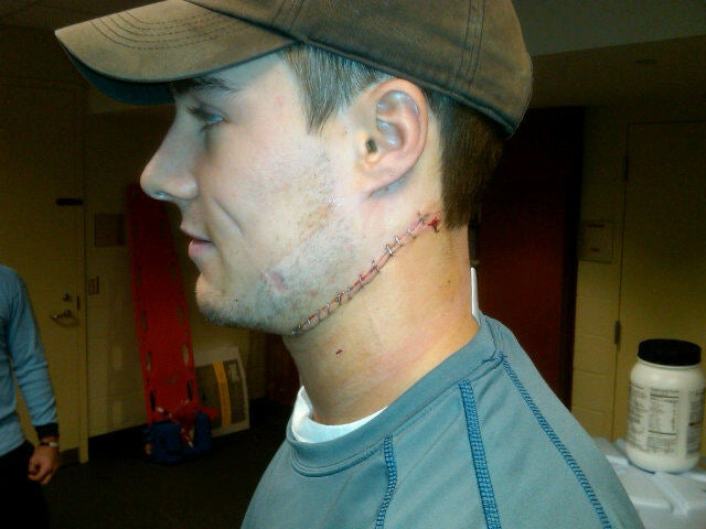 The Result Of A Skate To The Neck Is Quite Frankensteiny