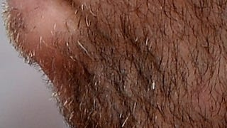 Whose Disgusting Baseball Chin Is This?