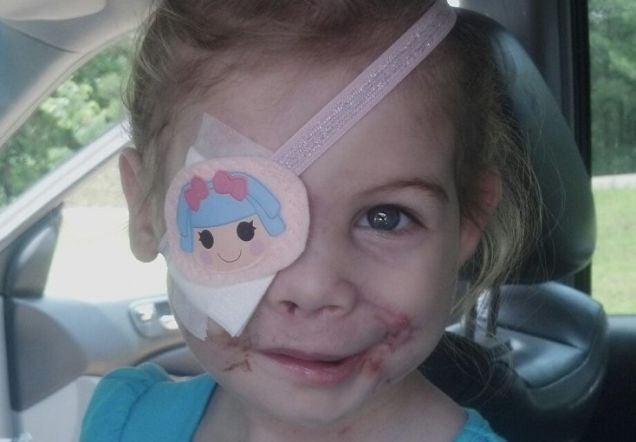 Family of Disfigured Girl Promises KFC Story Was Not a Hoax