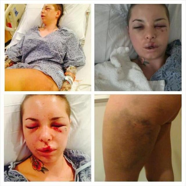 Christy Mack Posts Photos, Account Of Alleged Beating By War Machine