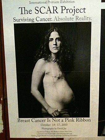 SCAR Project Exposes The Realities Of Breast Cancer