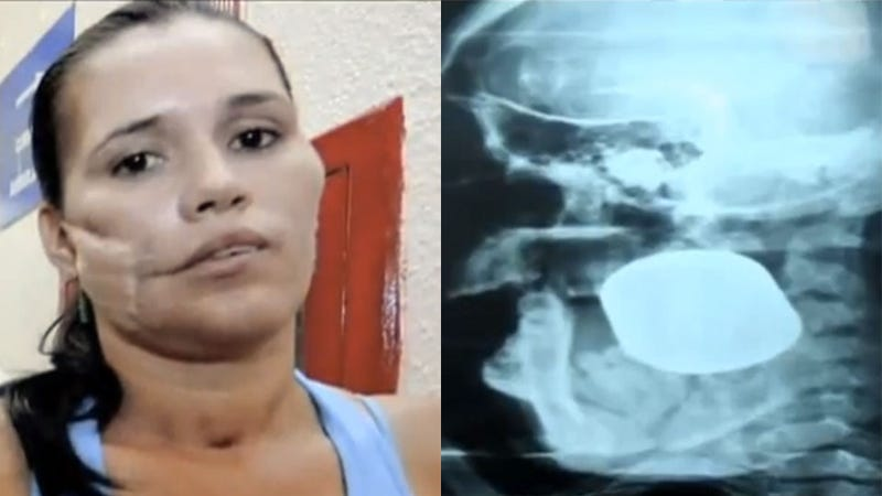 This Woman Had a Live Fragmentation Grenade Stuck Inside Her Face