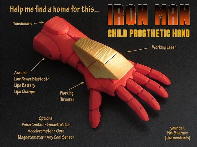 Artificial Iron Man Hand Makes Kids Feel Like Tony Stark