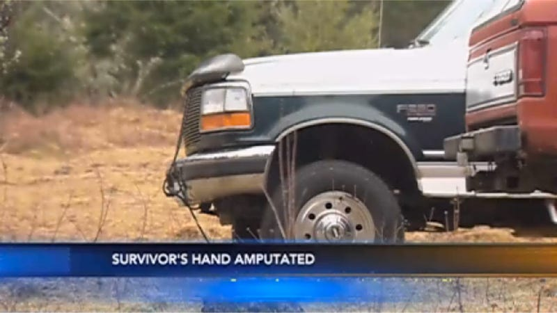Woman Loses Hand After Getting It Stuck Under A Hood For 18 Hours