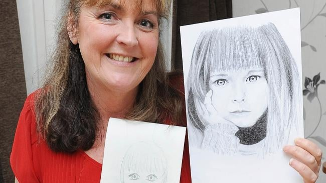 Woman Develops Remarkable Ability To Draw After Suffering Brain Injury