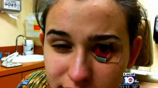 Teenager Nearly Goes Blind After Eye-Eating Parasite Grows on Her Contact Lens