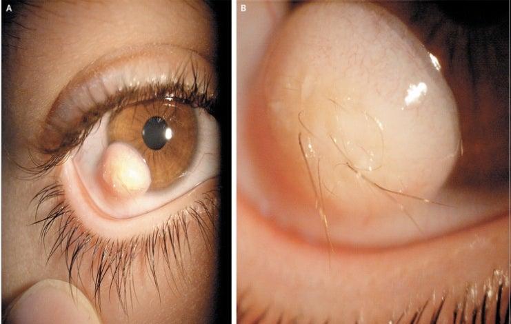 Here's what a literal hairy eyeball looks like