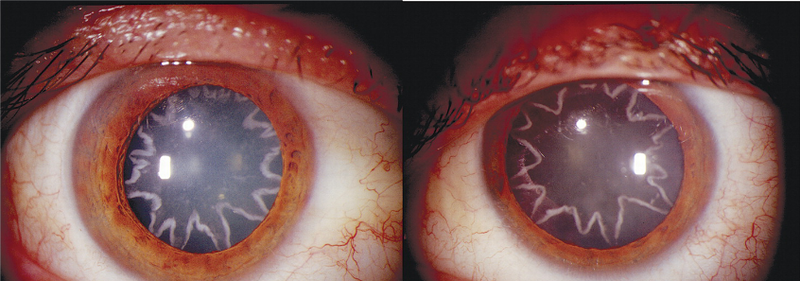 A 14,000-volt electrical shock gave this man star-shaped cataracts