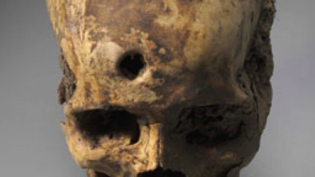 The Lost Civilizations That Pioneered Skull Surgery