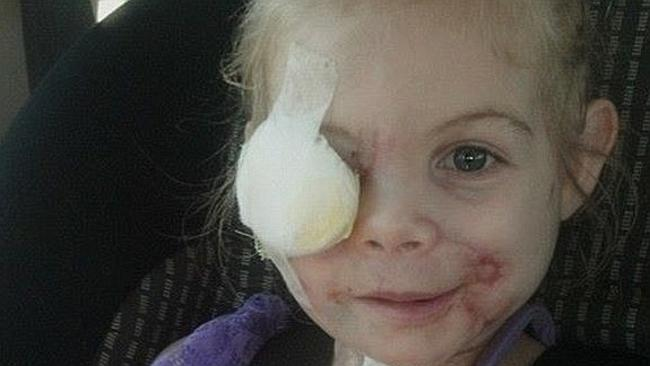 Little Girl Disfigured by Pit Bulls Now Turning Down KFC's Money