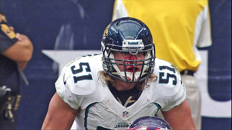 Paul Posluszny Has The Face Of A Football Player
