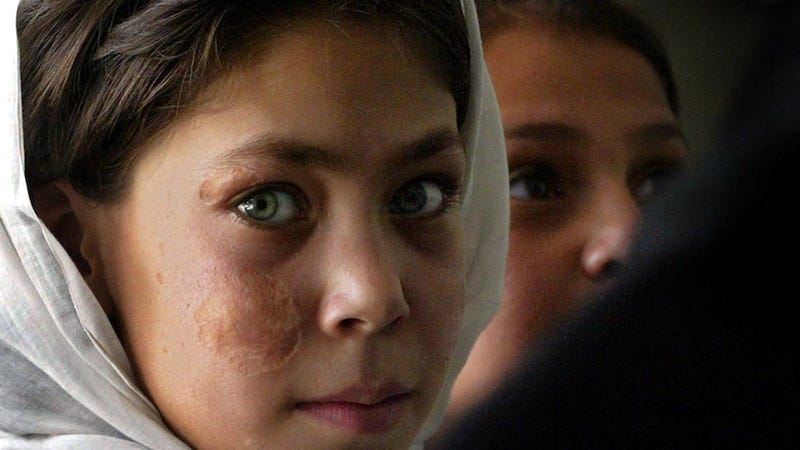 160 Afghan Girls Poisoned For Daring Go to School
