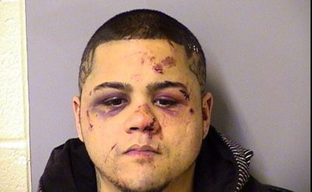 Guy Who Tried to Rob Mixed Martial Arts Fighter Now Looks Like This