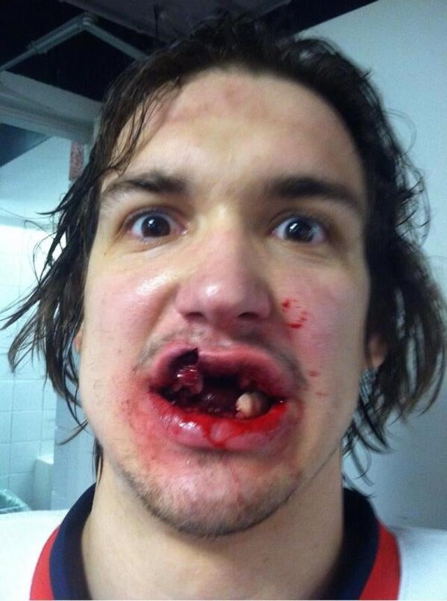 Red Wings Prospect Takes Puck To Mouth, Tweets Photo Of Aftermath