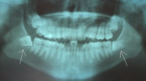 Wisdom teeth could provide your own private bonanza of stem cells