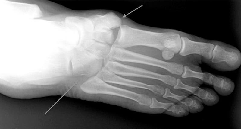 What Exactly Is A Lisfranc Injury, Anyway?