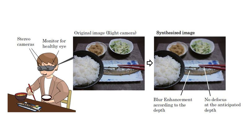 Researchers Will Restore Damaged Depth Perception with Electronic Eyes