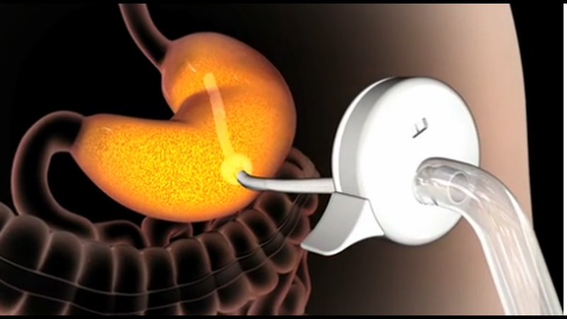 Terrifying New Bulimia Machine Will Suck Food From Your Stomach