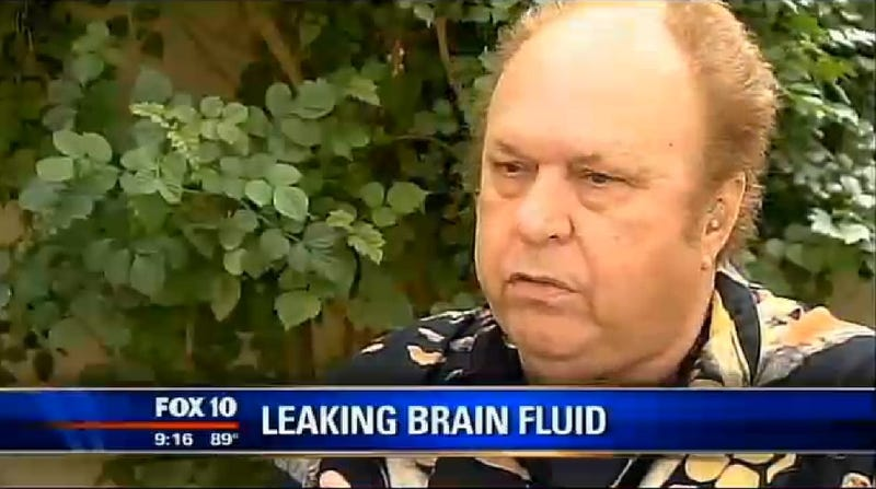 Man With 'Chronic Runny Nose' Told His Brain Fluid Was Leaking