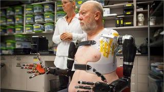 Esta increíble prótesis robótica doble se controla con el pensamiento