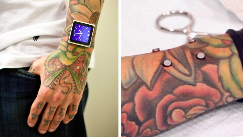 Guy Gets Magnets Implanted in His Arm To Hold His iPod, Forgets There's a New Design Every Year