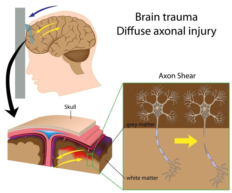 Why a Head Injury Can Be Far Worse Than You Realize
