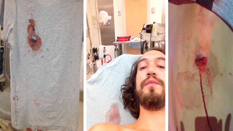 A Dark Knight Shooting Victim On Reddit: 'This Is Where the Bullet Grazed My Back' (Update)