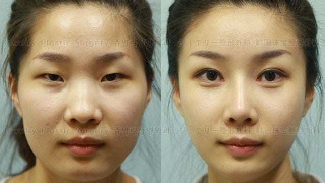 How South Korean Plastic Surgeons Make Passport Photos Worthless