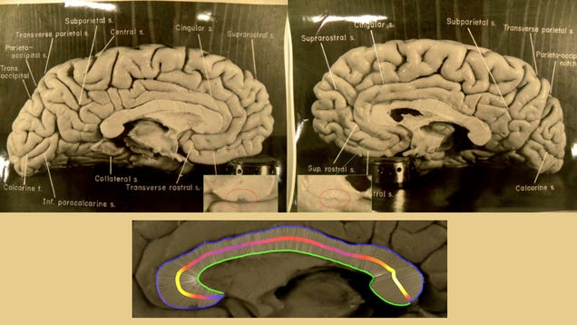 Científicos descubren por qué el cerebro de Einstein era único