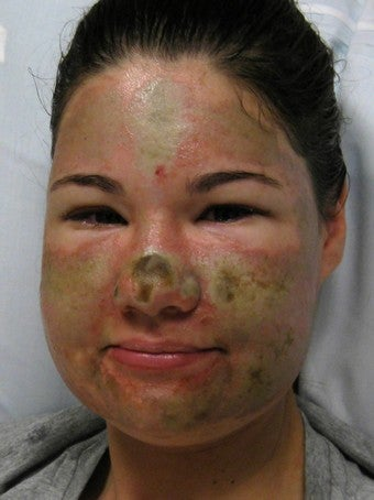 Acid Attack Hoax Prompts Theft Charges, Race Discussion